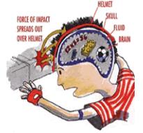Picture of brain adn helmet